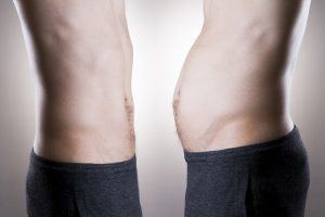 Liposuction for Men in Seattle