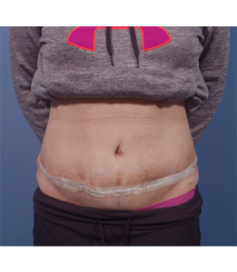 Tummy Tuck Healing Process Week 2 Post-Op Frontal