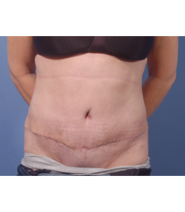 Tummy Tuck Healing Process Week 4 Post-Op Frontal