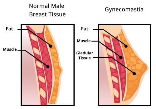 Gynecomastia Male Breast Reduction Surgery Seattle-Bellevue WA