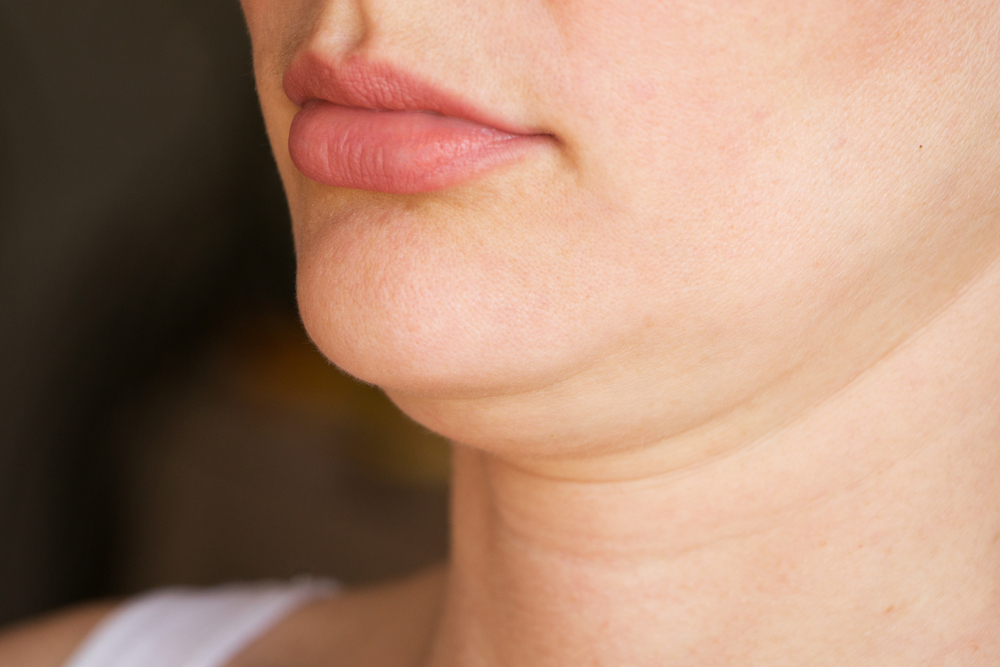 Liposuction For Double Chin In Olympia