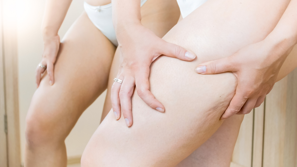 Liposuction For Cellulite In Bellevue