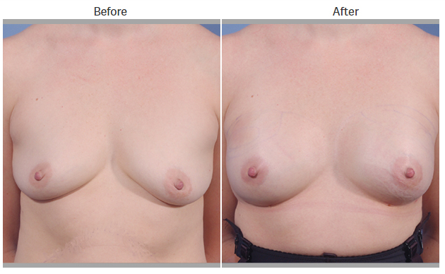 Bellevue, Seattle Natural Breast Augmentation (Fat Grafting)