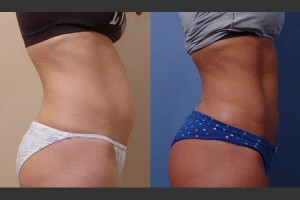 Liposuction Body Contouring in Lynnwood