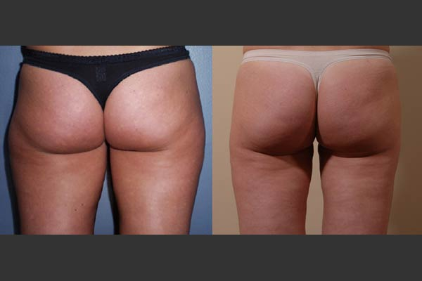 Bellevue Liposuction Surgery