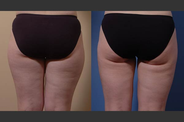 Seattle Liposuction Surgery